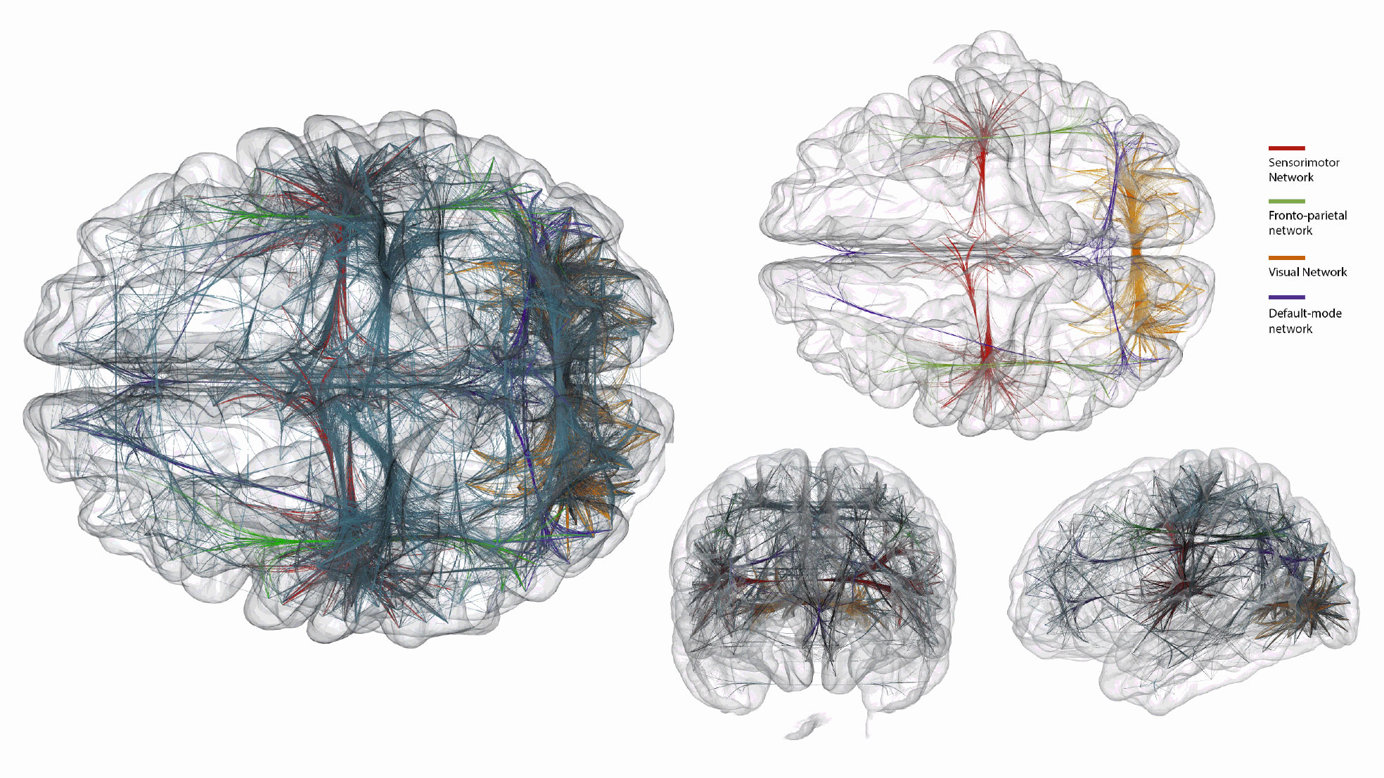 the connections of blindness and the brain essay The aim of this review is to study the relationship between the physiology and  psychology of vision and to analyze, based on our own  the visual region of the  brain is known as the area striata  considering it this way, we are almost blind.